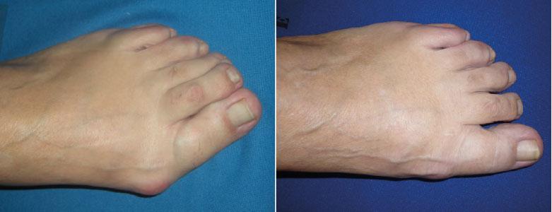 Cirug a del pie m nimamente invasiva d a mundial de la for Operacion de pies